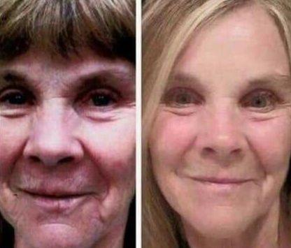 Wendy Wilkens Facial Yoga Exercise Program And Natural Facelift Regimens