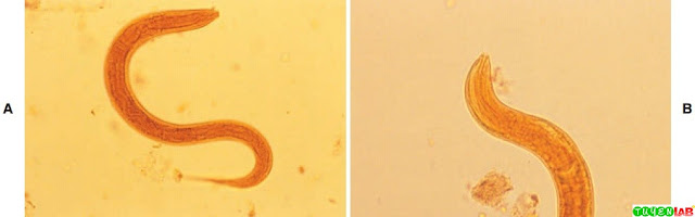 A, Hookworm rhabditiform larva. Notice long buccal capsule and lack of prominent genital primordium. B, Hookworm rhabditiform larva, buccal capsule.