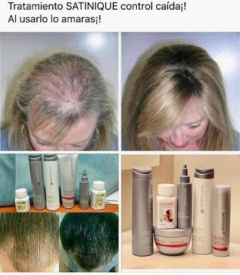Productos natural para ayudar a crecer el cabello en forma jamás vista!!