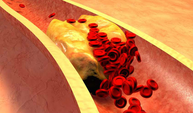 8 Kebiasaan Sederhana Tapi Penting Untuk Menurunkan Kolesterol