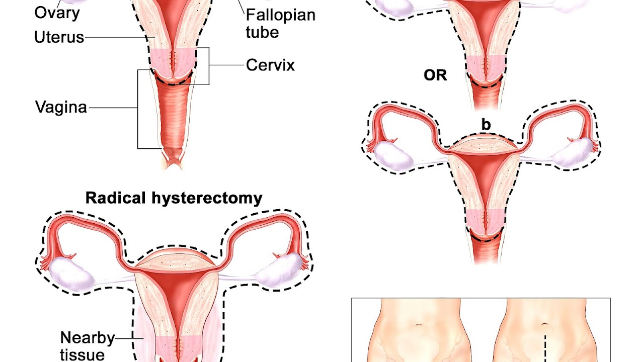 Side Effects Of Partial Hysterectomy Effect Choices