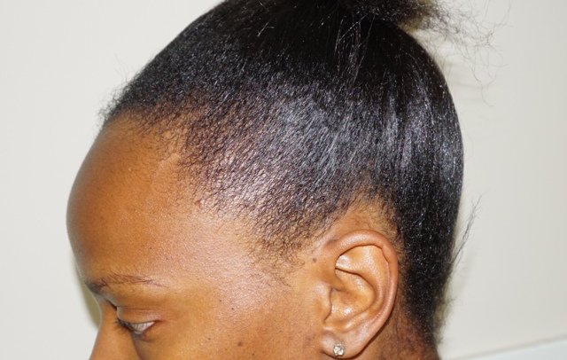 Reviv Hair Stimulating Serum (bellanoirbeauty.com)