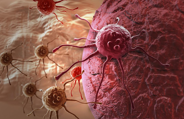 newgersy\Scientists may have found a way to stop cancer from metastasizing