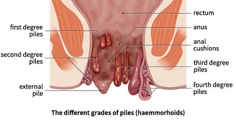 natural home remedies for piles hemorrhoids treatment