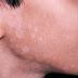 Nguyên nhân triệu chứng cách loại bỏ bệnh viêm da