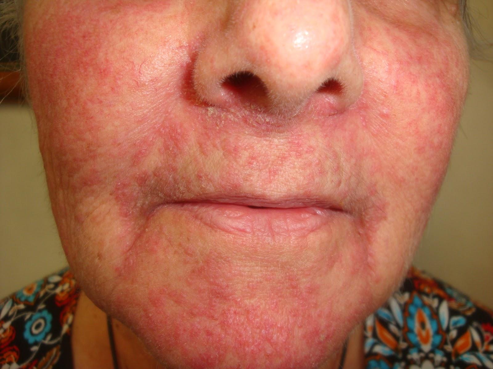 Steroid rosacea treatment british knight pharmaceuticals