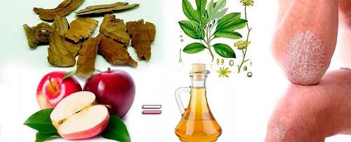 Tratamientos Naturales Combatir La Psoriasis