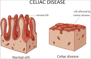 Symptoms, causes and treatment of Celiac disease