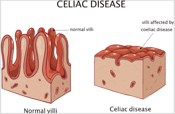 Treatment and ways to get rid of Celiac disease naturally.