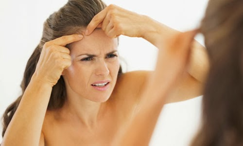 10 Mitos Menyesatkan Seputar Jerawat