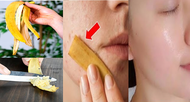 Banana Peel Treatment: Amazing Home Remedy To Get Rid Of Your Pimples Without Spending Money