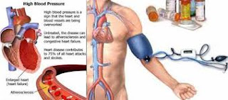 https://habbatuntop.blogspot.com/2018/02/obat-penyakit-darah-tinggi-herbal-alami.html