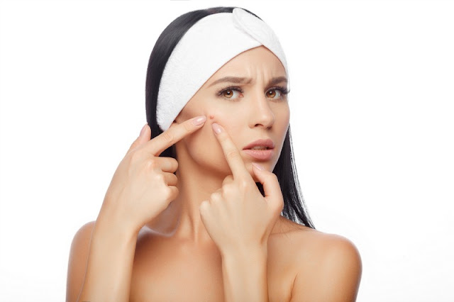 acne and pimple removing tips, how to remove pimple, how to get rid of acne, how to remove acne, home remedies to remove acne, home remedies to remove pimples, tips to get rid of acne, tips to get rid of pimple