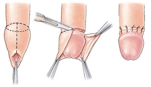 Riesgos de cirugia de circuncision