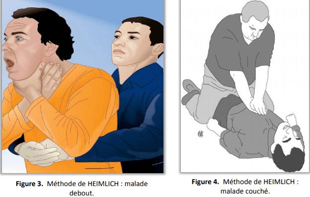 manœuvre de HEIMLICH méthode de heimlich sofiotheque