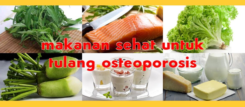 Sumber Vitamin D dan Kalsium Untuk Tulang Osteoporosis