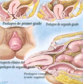 prolapso uterino tratamento natural