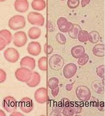 Informasi Seputar Penyakit Thalasemia