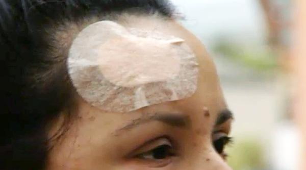 Herida por una piedra lanzada a una guagua de Global, Agüimes