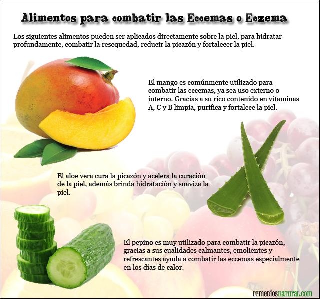 Remediosnatural Com Remedios Naturales Para Combatir Eccema O Eczema