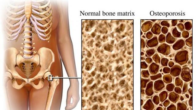 Cara Cegah osteoporosis Sejak Dini