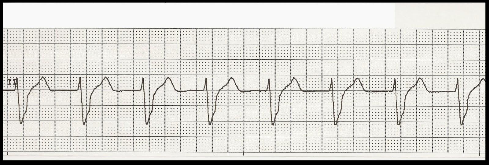 Float Nurse: EKG Rhythm Strip Quiz 215