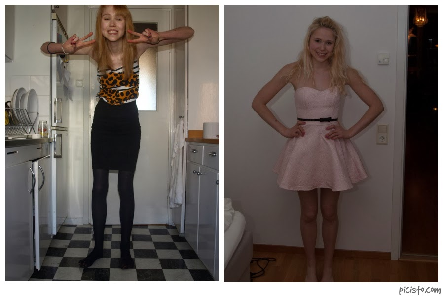 A Life without Anorexia: There is life after an eating ...