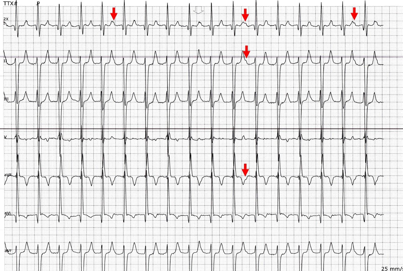 Ecg Rhythms Atrial Tachycardia Is Easier To Catch In Telemetry Floors