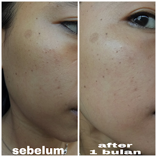 after before menggunakan avoskin miraculous refininh toner