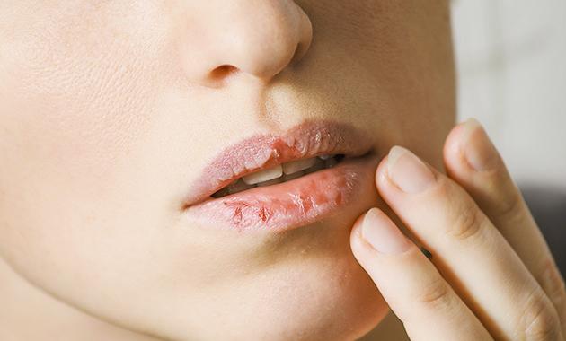 Penyebab dan Cara Menyembuhkan Bibir Kering, Pecah-Pecah, Menghitam, dan Bengkak