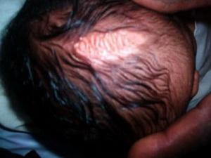 عبارة (لا إله إلا الله محمد رسول الله) مكتوبة على رأس طفل سوداني بولاية النيل الأزرق