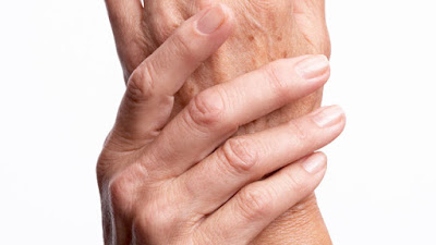 natural relief tips for reduce arthritis pain