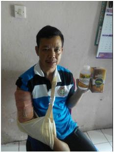Obat Patah Tulang Tanpa Operasi