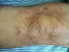 a malignant proliferation of certain blood cells  Mycosis Fungoides Symptoms And Treatment