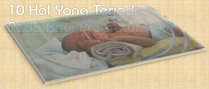 Lakukan 10 Hal Perawatan Ektra Pada Bayi Prematur