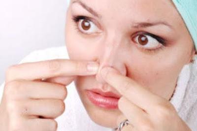 3 Cara Alami Menghilangkan Komedo Tanpa Rasa Sakit