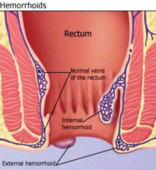 Understanding Haemorrhoids