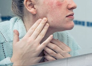 severe eczema treatment