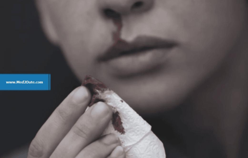 Epistaxis-bleeding-nose