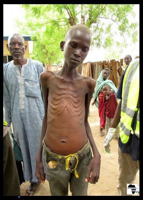 Photos: Women and children rescued from Boko Haram are starving