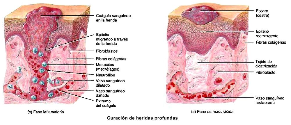 Homeostasis: curación de las heridas cutáneas