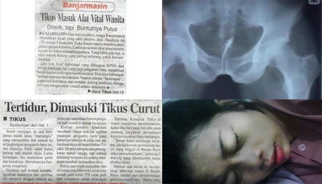 Banjarmasin - Tidur Tidak Pakai CD, Alat Vital Wanita Ini Dimasuki Tikus .