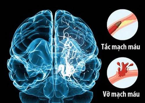 Tai biến mạch máu não là bệnh nguy hiểm hay gặp trong mùa hè, vì sao?