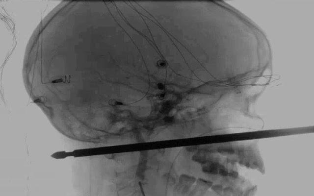 Μεταλλική ράβδος διαπέρασε το κεφάλι 10χρονου παιδιού - Σώθηκε από θαύμα λένε οι γιατροί