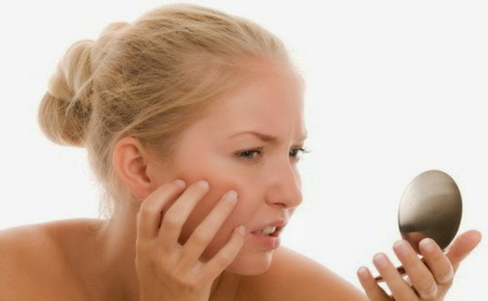 Acne ~ How To Solve Stains Acne Scars  Naturally