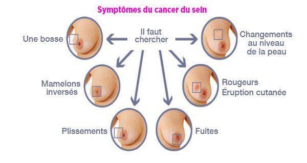 type de cancer du sein