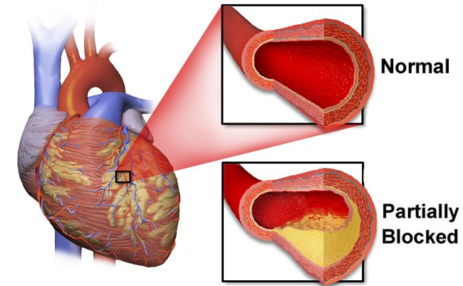 Definisi, Gejala, dan Pengobatan Penyakit Jantung Koroner