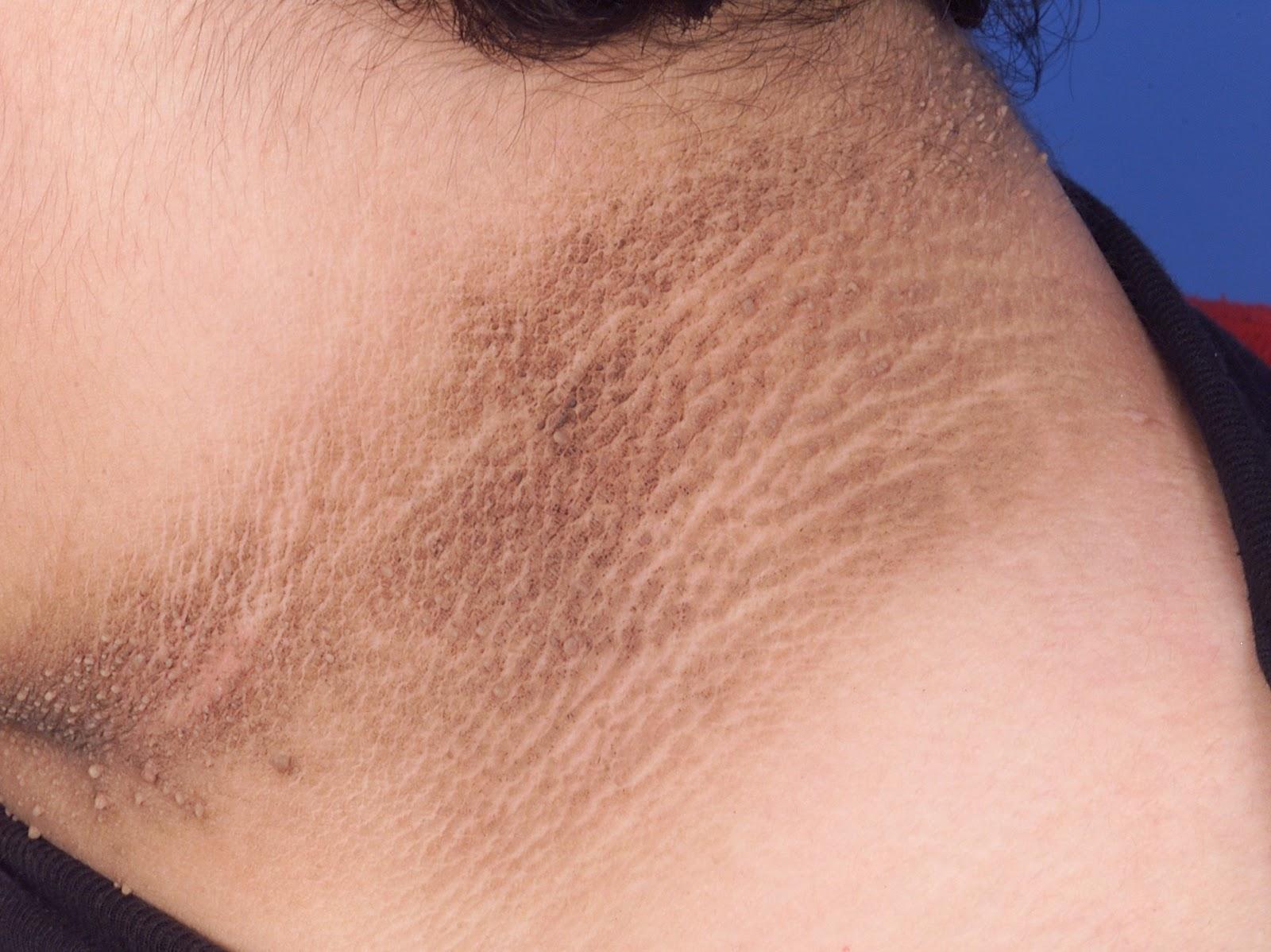 Congratulate, your pigmentation in asian skin