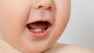 5 Penyebab Pertumbuhan Gigi Pada Bayi Terhambat