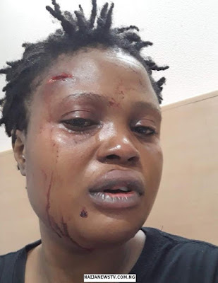 Indian Based Nigerian Woman Attacked by Racist in Delhi
